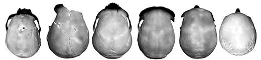 Comparaison des cranes de flores avec d'autres hominides