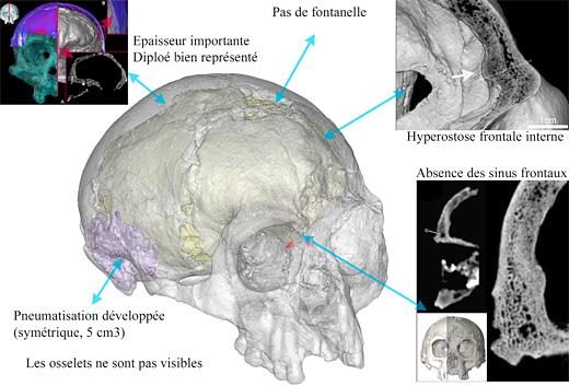 L'intérieur du crâne d'Homo floresiensis à l'étude...