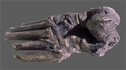 Arthrose sur le pied d'un Homo habilis retrouvé à Odulvai