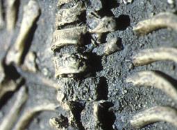 Arthrose sur le squelette de la Chapelle-aux-saints