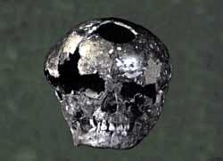 Crâne hydrocephale Rochereil