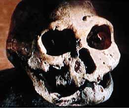 Crâne d'Homo heorgicus édenté