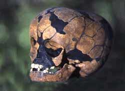 Crâne macrocephale de Staroselle