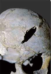 Femme retrouvée à l'abri Cro-Magnon ayant reçu un coup de pioche lors de sa découverte