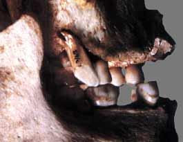 Dents surnuméraires sur  la machoire de l'abri Pataud