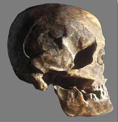 Fracture du crâne de l'Homme de Chancelade
