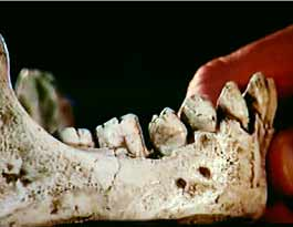 Osteite sur la mandibule d'un Homo erectus du Lac Turkana