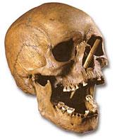 Crâne transpercé de l'homme de Porsmose